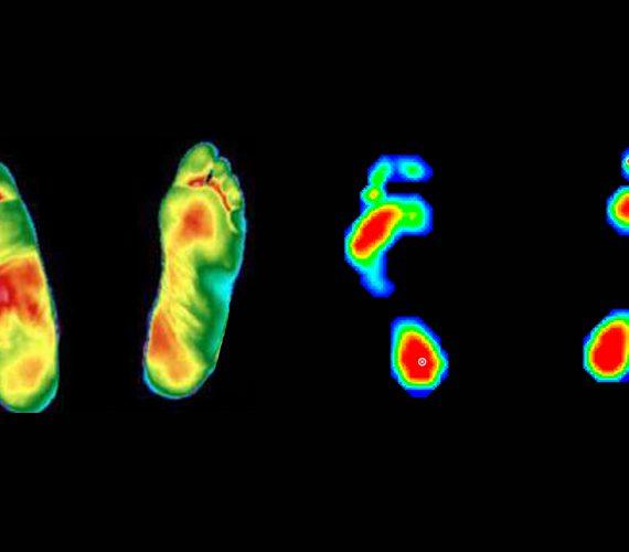 termografia e baropodometria